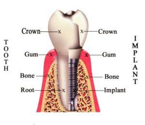 implant_schema